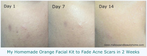 How I Cured My Acne Scars in 2 Weeks with My Homemade Facial Kit?