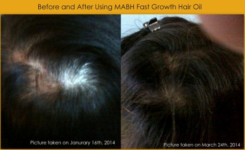 before and after using mabh fast growth hair oil