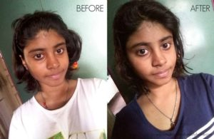 How I Instantly Removed Tan with My Homemade Face Pack? – Tutorial, Before & After Photos